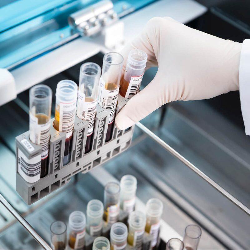 Einsetzen der Blutproben